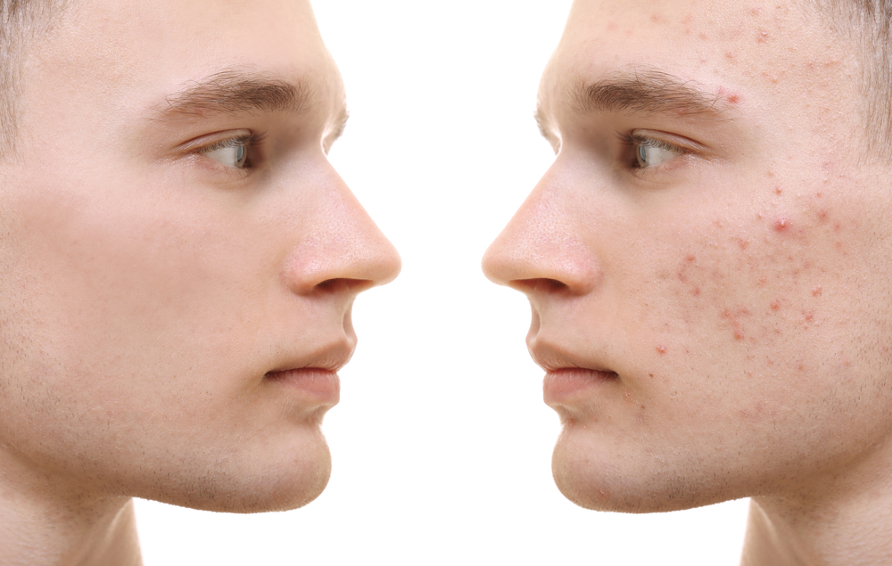 Acne and scarring treatments