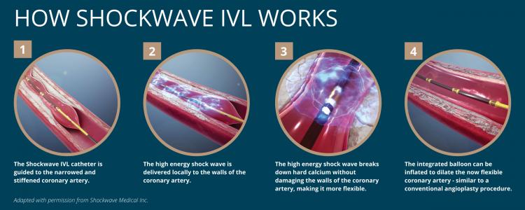 how does shockwave ivl work